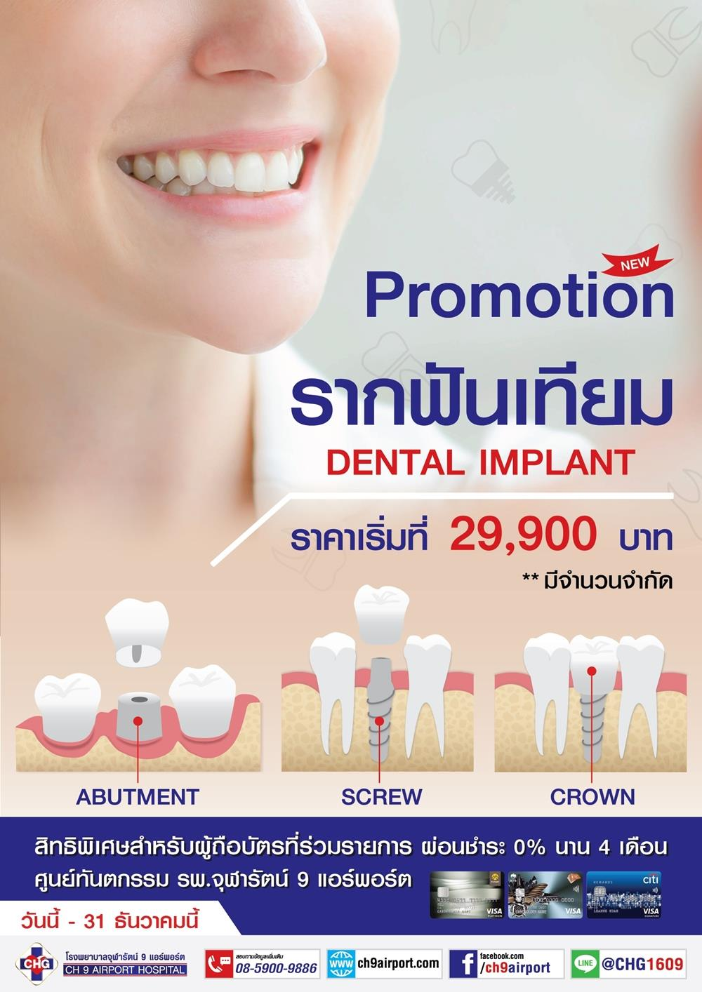6009-DentalImplant-1
