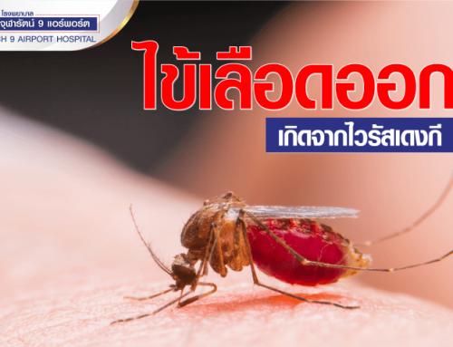 โรคไข้เลือดออกเกิดจากไวรัสเดงกี (Dengue Virus)