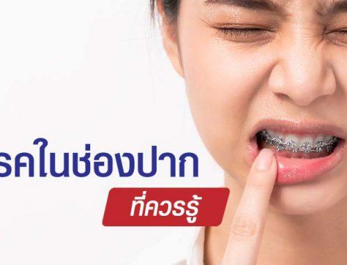โรคในช่องปากที่ควรรู้