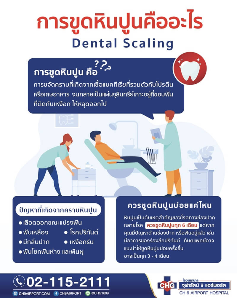 6309-dental-scaling-2