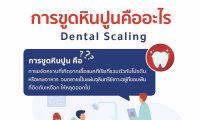 6309-dental-scaling